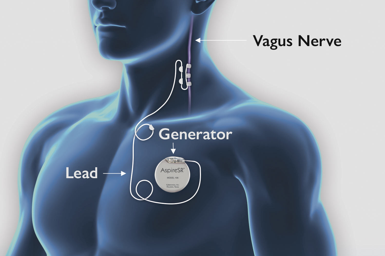 Diagram showing placement of the VNS generator in a persons chest